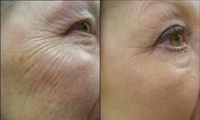 Lasersko podmlađivanje lica